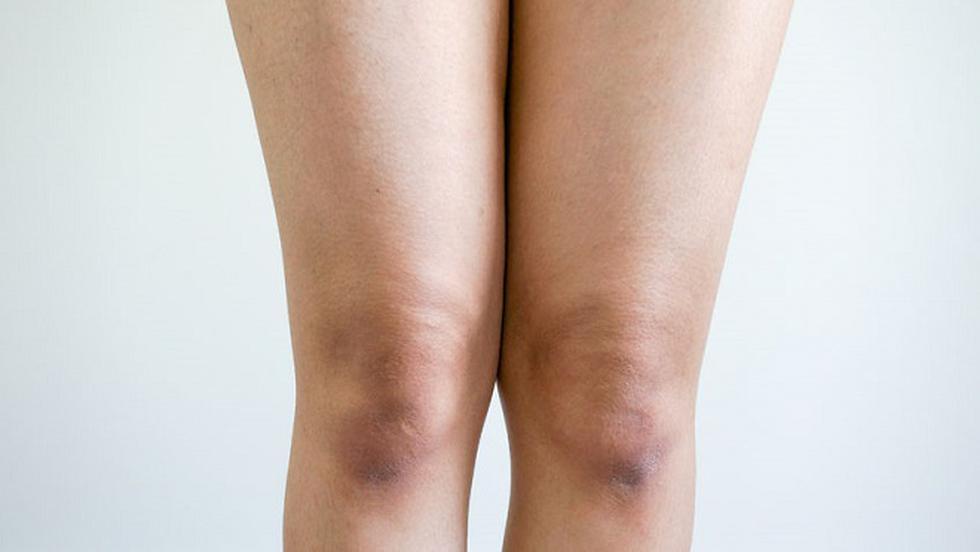 Hemartroza închisă la genunchi Durerea cronică de genunchi