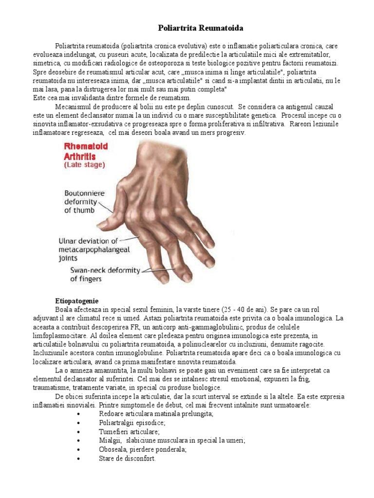 examen comun pentru artrita reumatoidă