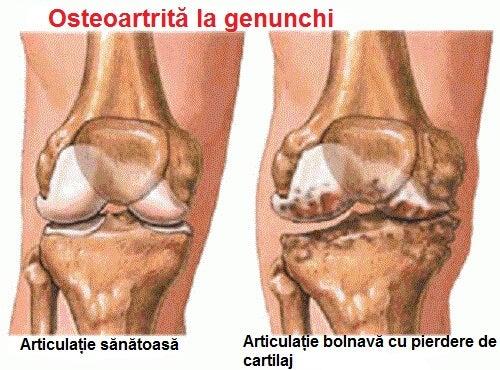 dureri de noapte în articulațiile gleznei ascorutină pentru dureri articulare