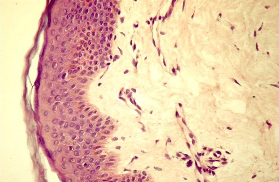 tot despre țesutul conjunctiv al cartilajului