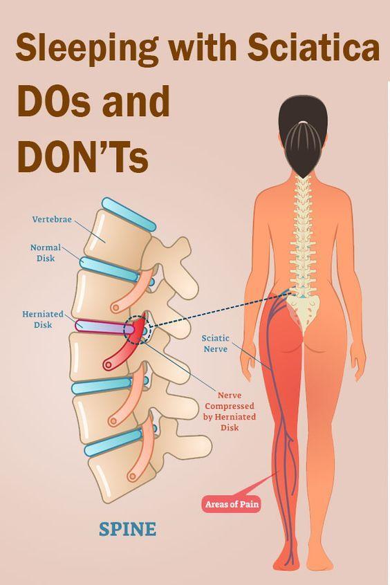 Acupunctura pentru DURERI de PICIOARE: ce rezultate are? - Servus Expert