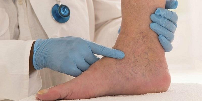tratamentul articulațiilor piciorului cheag de sânge