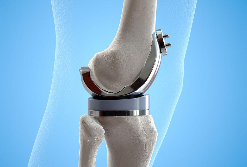 deteriorarea șoldului și a genunchiului
