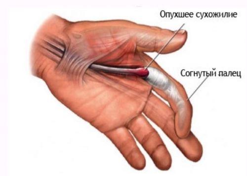 Articulațiile degetelor doare după exercițiu, Durere în articulațiile șoldului după exercițiu