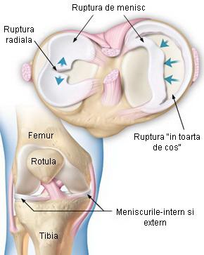 unguente pentru ruperea meniscului articulației genunchiului