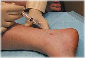 INFILTRATII INTRA-ARTICULARE. Infiltratii in genunchi