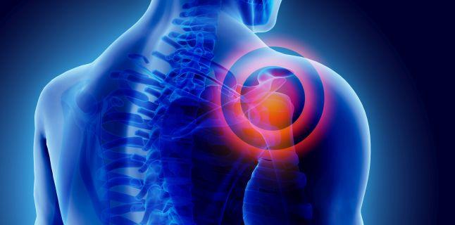 Condroza acută: simptome și tratament. Ce trebuie făcut dacă starea se agravează - Sciatică
