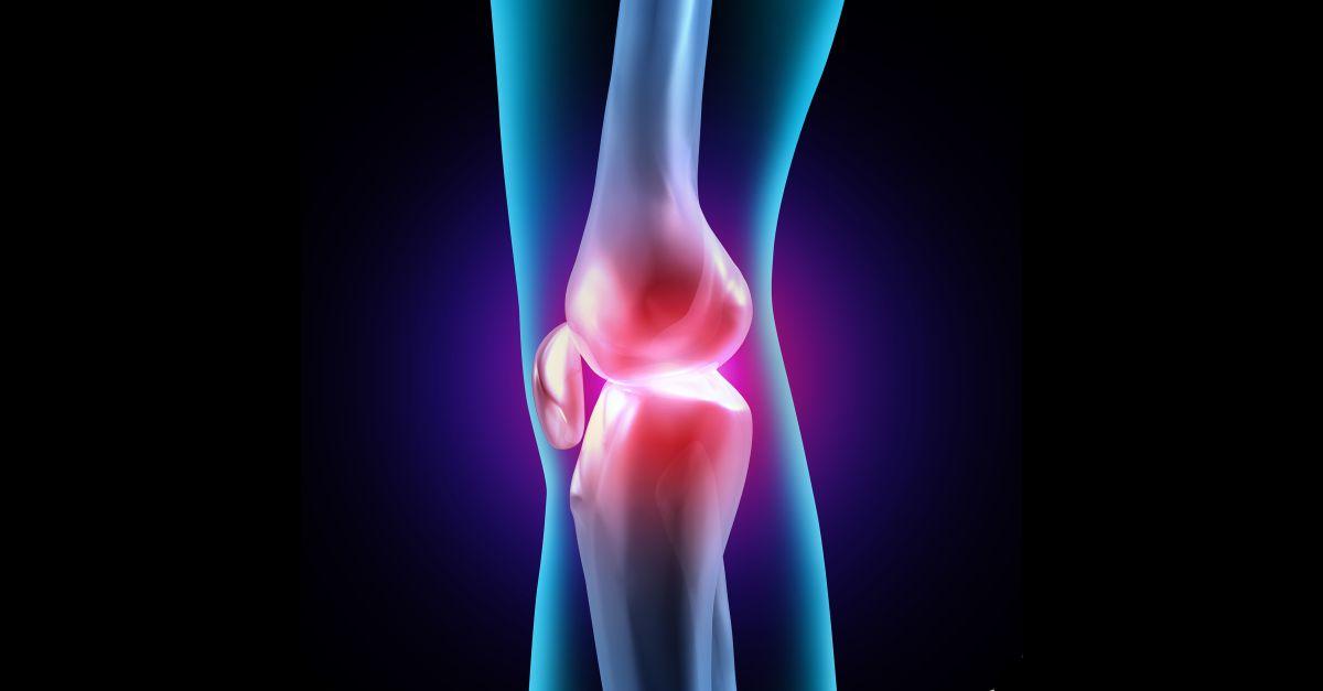 thuja articulară tratamentul articulațiilor genunchiului cu artroză