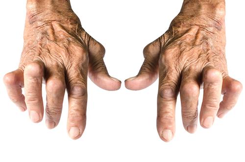Poliartrita reumatoida Tratament cu artroza reumatoidă de nouă generație