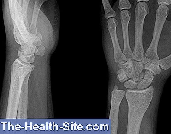 durere de fractură la încheietura mâinii răsuciți și dureri la nivelul articulațiilor