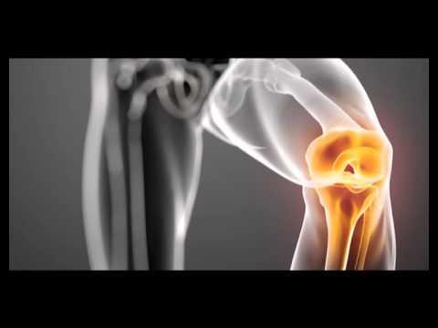 artroza articulației uncovertrale tratament comun în regiunea carpatică