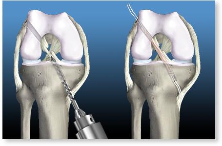 Deteriorarea ligamentului cruciat anterior al simptomelor genunchiului. Semne si simptome