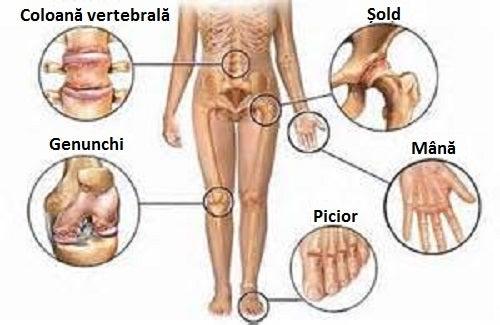 regim de tratament pentru durerile articulare