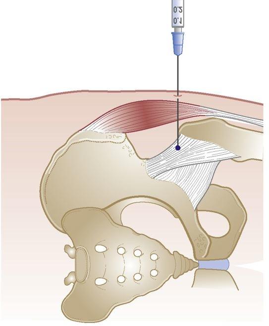 există vreo displazie de durere a articulației șoldului durere plictisitoare în articulațiile picioarelor