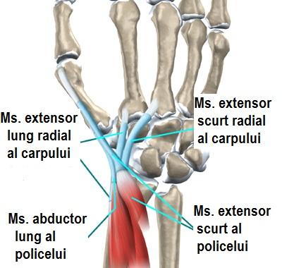 afectarea tendonului la încheietura mâinii