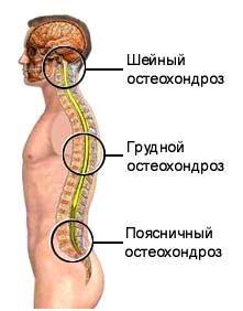 Tratamentul osteocondrozei cu medicamente nesteroidiene Medicamente cu efect anestezic