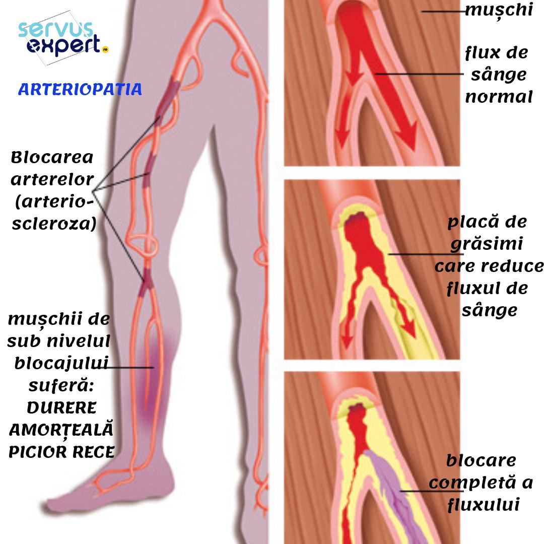 durere la nivelul articulațiilor