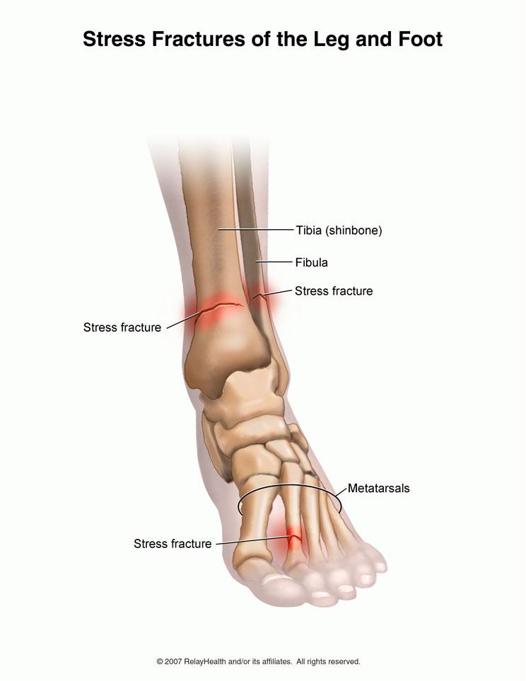 articulația piciorului doare după alergare