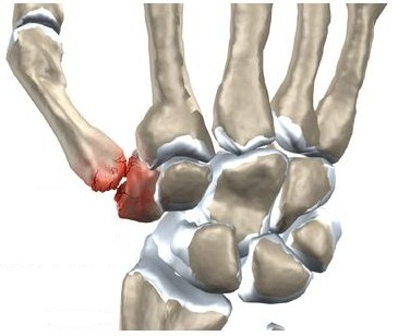 articulațiile degetelor umflate rănite
