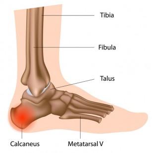 articulațiile doare după apăsarea picioarelor