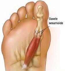 artrita pe picior, lângă degetul mare