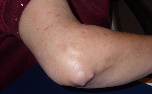 artrita reumatoidă a tratamentului articulației cotului