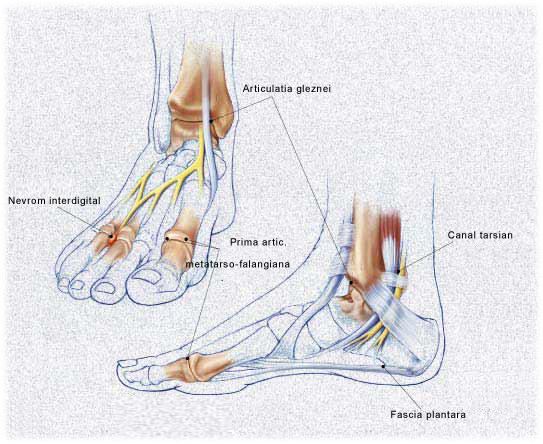 artroza cronică a articulației gleznei