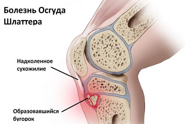 artroza genunchiului 2 grade ce trebuie făcut