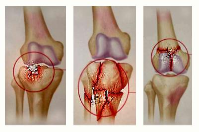 artroza gimnasticii de tratament a articulațiilor genunchiului durere pe partea genunchiului asta