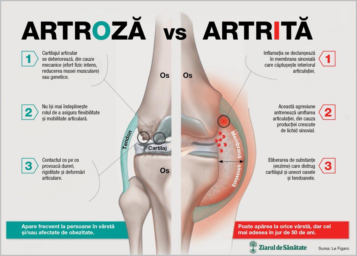 artroza și artrita genunchiului