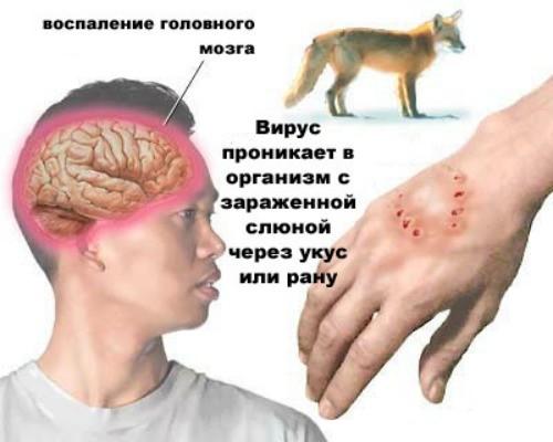 dureri articulare rabie