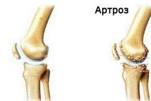 tratamentul nutrițional al artrozei