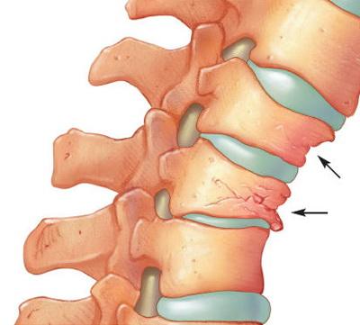 Artroza articulațiilor intervertebrale ale coloanei vertebrale toracice - championsforlife.ro