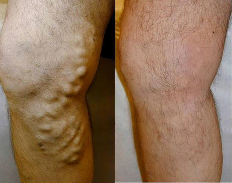 slăbiciune în picior în varicoză)