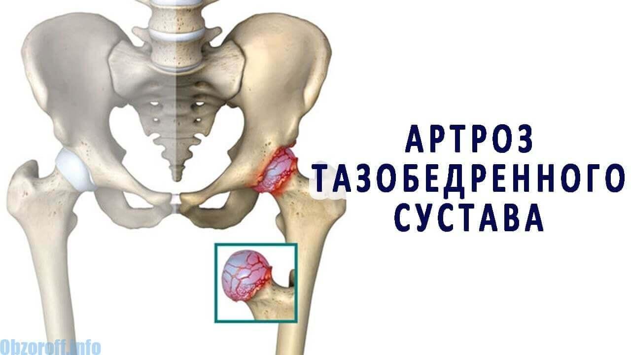 Efectele inițiale ale artrozei articulației șoldului