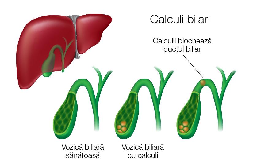 Bila biliară pentru bolile articulare. Bolile colecistului, ce boli are fierea