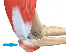 bursita articulației cotului cum să tratezi artroplastia șoldului doare