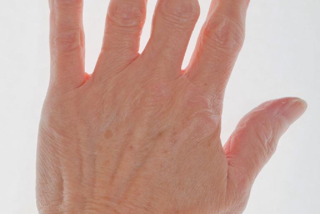 artrită degetul mare