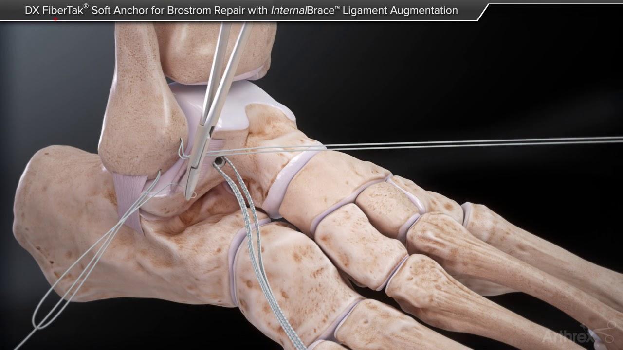 Deteriorarea ligamentului deltoid al gleznei