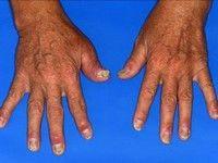 tratează artrita psoriazică