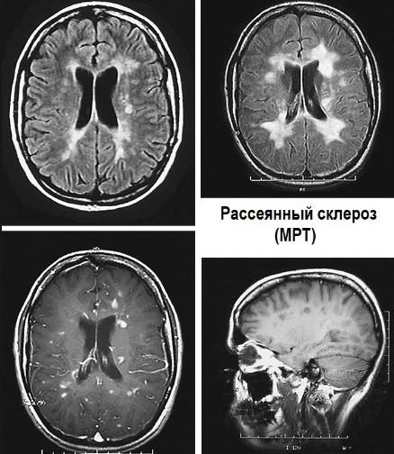 faceți articulații rănite cu scleroză multiplă condroitină glucozamină pentru osteocondroză cervicală