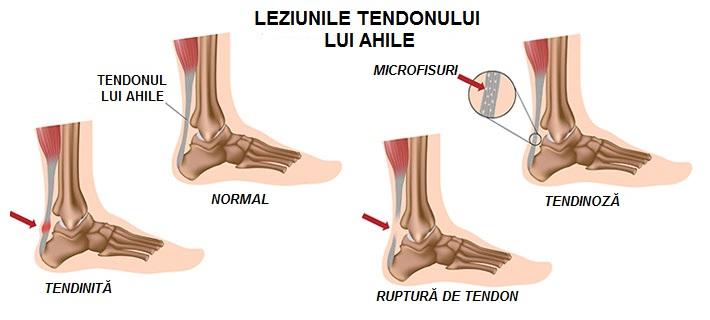 Picioarele plate afectează vederea