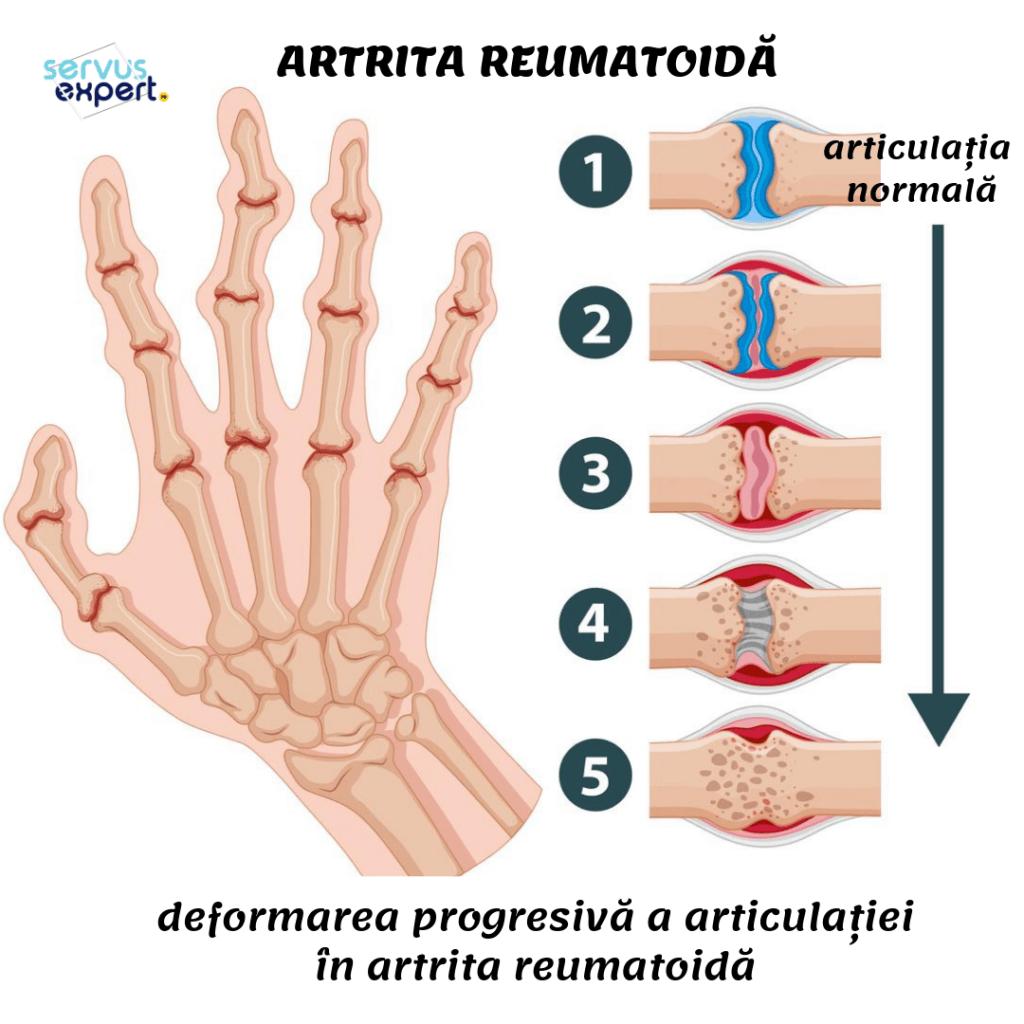 complicații după artrita articulațiilor