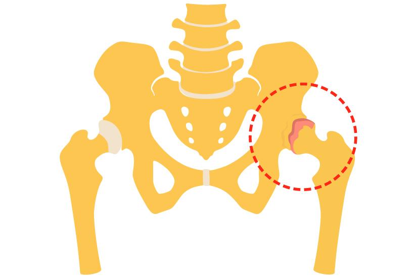 COXARTROZA – Artroza soldului | Spitalul Clinicco