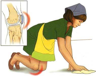 tratamentul luxației cronice a gleznei ce să bei cu artroza articulației șoldului