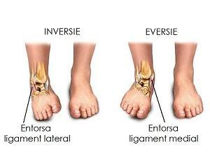 Tratament entorsa - CHIROMEDICA Health & Wellness Center Cluj
