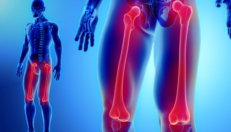 cum să tratezi o articulație falsă într-o fractură