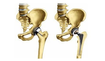 cum se tratează coxartroza displazică a articulației șoldului