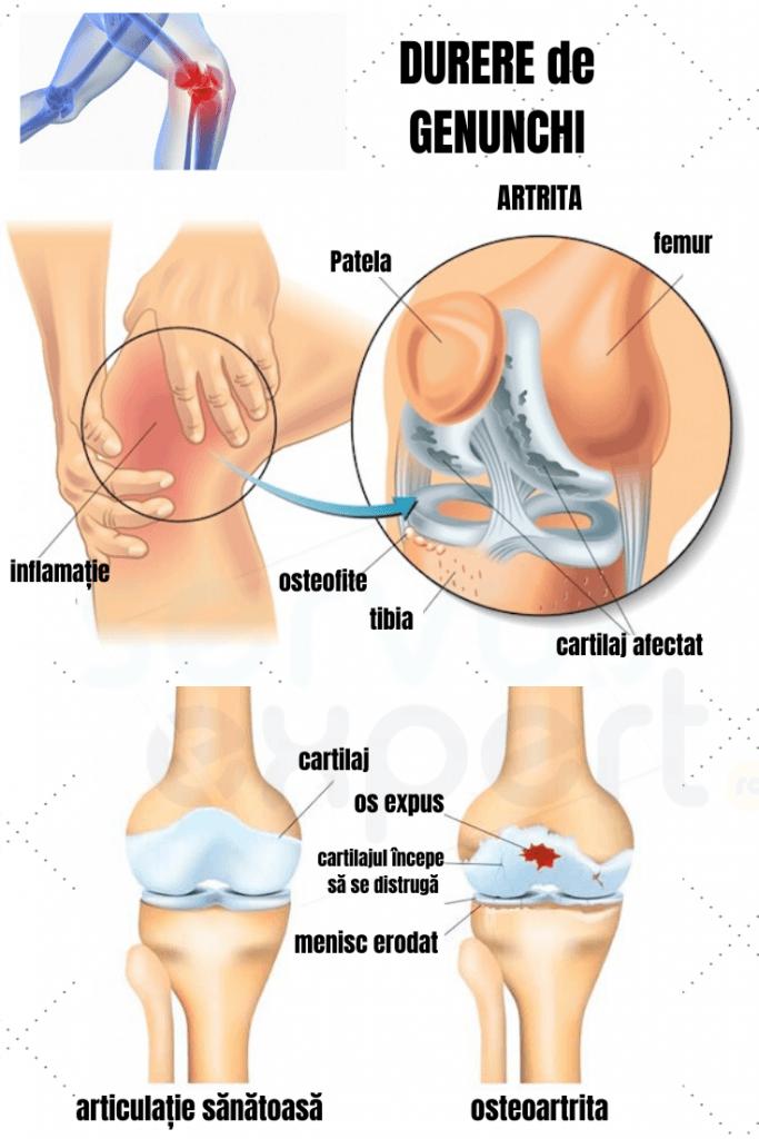durere și blocaj al genunchiului