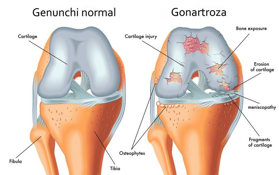 artroza calmante genunchiului semnul artritei degetelor